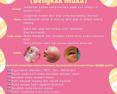 Cellulitis Muka (Bengkak Muka)