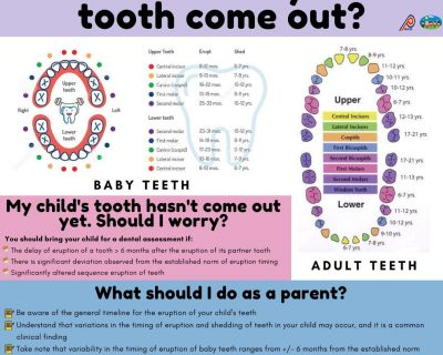 When should my child's tooth come out?